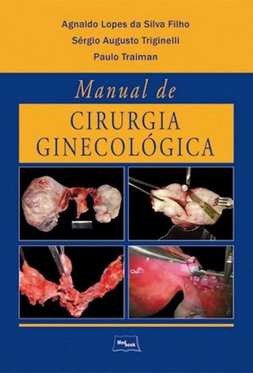 Livro Manual de Cirurgia Ginecológica