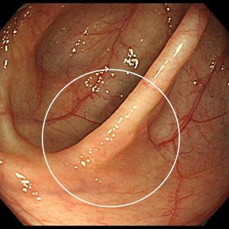 大腸SSA/P 内視鏡