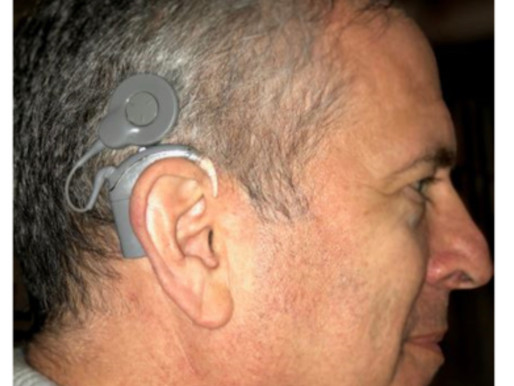 The Paradox of Temporary Permanence: My Cochlear Implant Journey