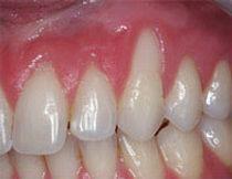 Periodontia Clínica SER Odontologia