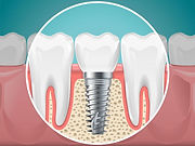 implante-dentario-regis-rossi-clinica-sa