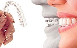 Odontologia invisível Clínica SER Odontologia