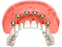 Próteses dentárias Clinica SER Odontologia