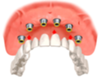 Prótese dentária Clínica SER Odontologia