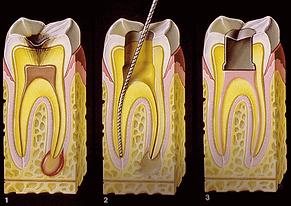 Endodontia Clínica SER Odontologia