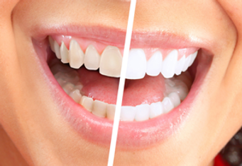 Clareamento dental Clínica SER Odontologia
