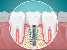 Implante dentário Clínica SER Odontologia