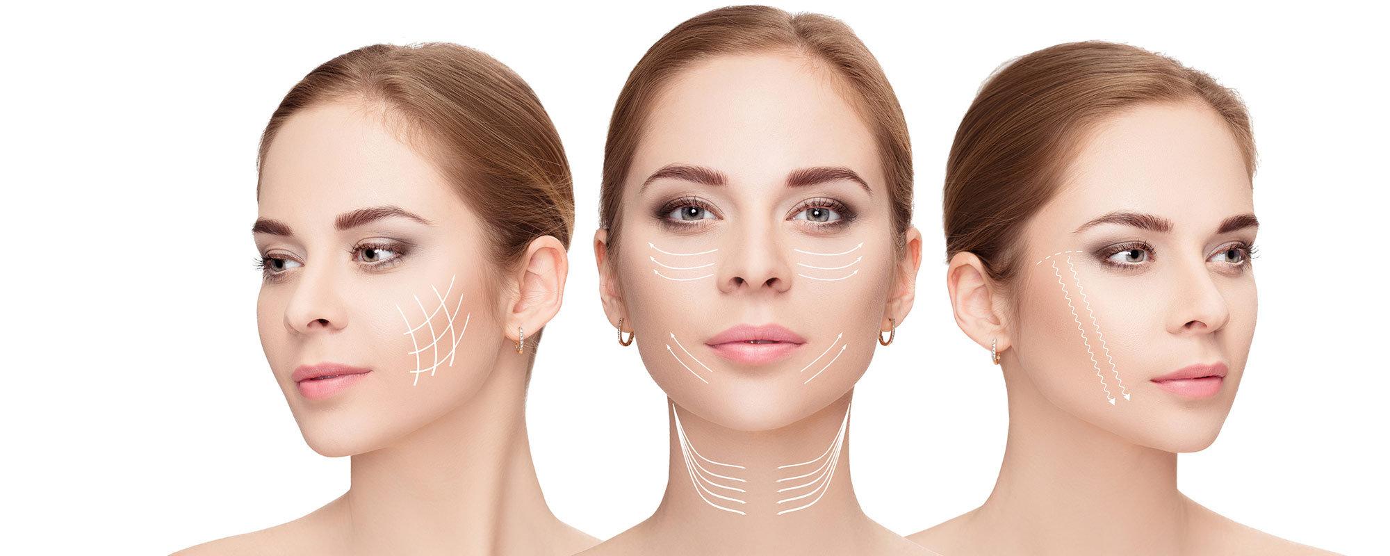 HIFU Face-Lifting pro Zone