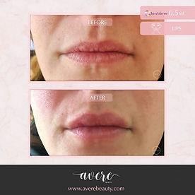 JUVÉDERM® Ultra XC temporarily adds fullness for lip enhancement.