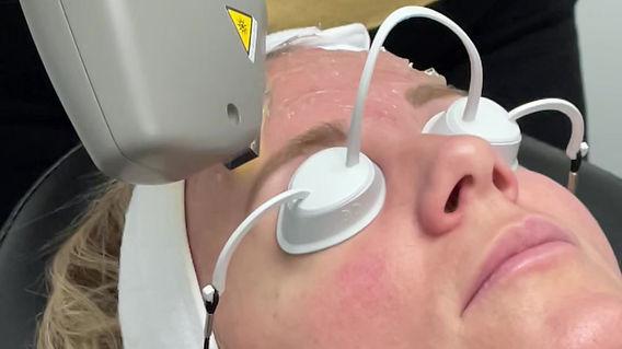 IPL intense pulsed light facial laser
