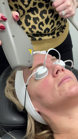 How Does IPL Help With Acne? Here's What You Need To Know