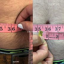 Men Belly Fat Reduction