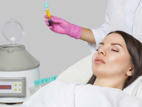 PRP Facial Frequently Asked Questions