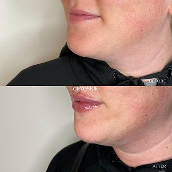 cryoskin for double chin thrive cryo spa