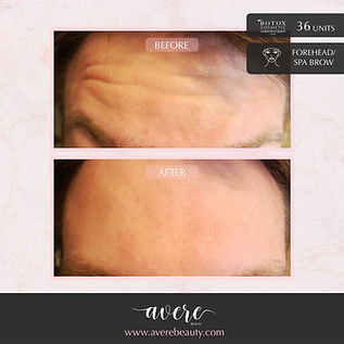 Men's Botox - Avere Beauty Pittsburgh Botox Wrinkle Reduction