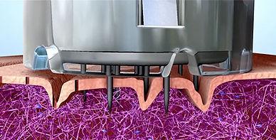 animation-still-microneedling.jpg