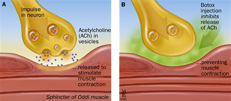 How botox inhibits the release of Ach. The mechanism of action of Botox. Botox uses for pain management.