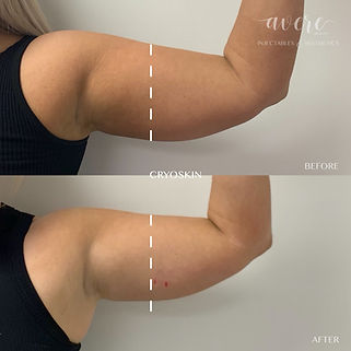 Cryo Before and After for chicken wings and arm slimming
