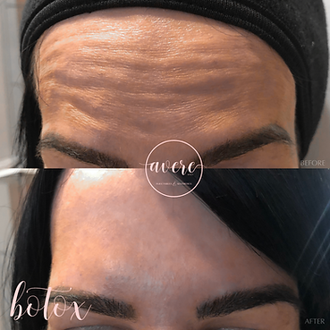Amanda Pittsburgh Botox for Forehead Wrinkle Reduction