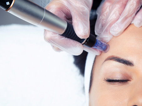 Why Microneedling Is So Beneficial for Your Skin
