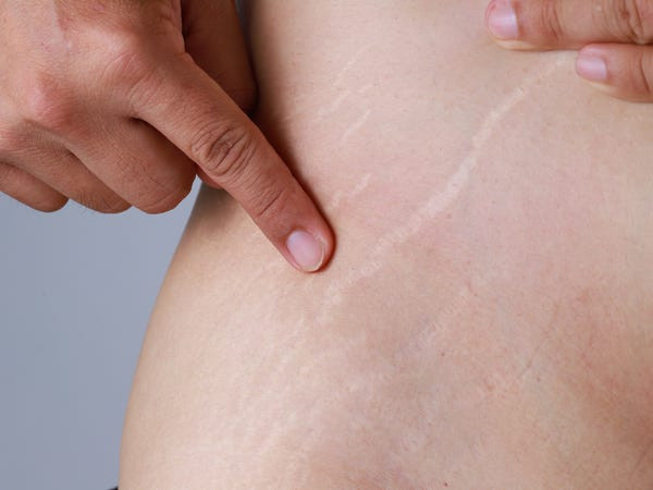 Get Rid of Stretch Marks with Avere Beauty's SkinPen
