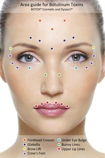 Where to inject Botox, Pittsburgh Botox, Glabellar Lines