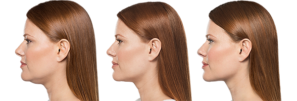 Kybella Before and After Results Avere Beauty Pittsburgh