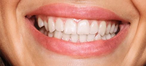 mouthlinesbotox