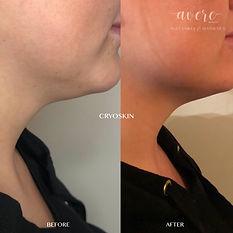 chin fat reduction cryo skin facial