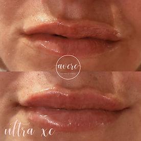 Avere Beauty Pittsburgh Lip Filler Medspa - Kim
