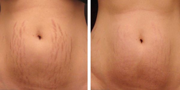 You can reduce stretch marks with micro needling and serums