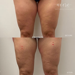 Cryo Before and After – Thigh Gap Slimming