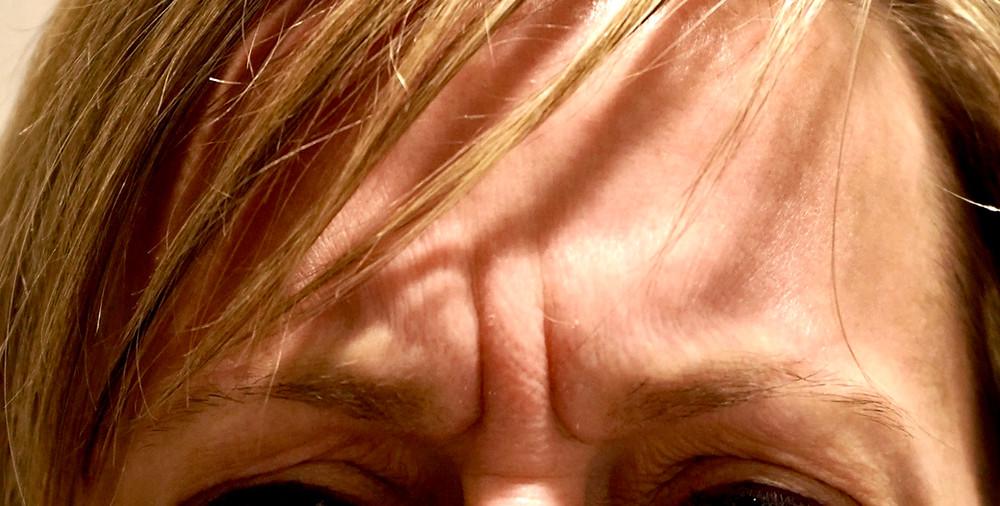 11's, Deep Glabellar Lines, Pittsburgh Botox, Etched 11's, Dermal Filler
