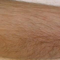 Voor - been