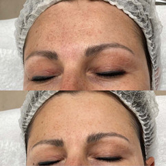 Huidverbetering en huidvernieuwing