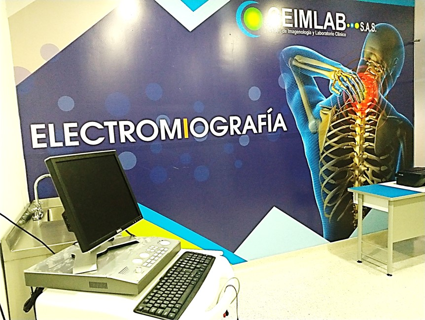 Electromiografía_(1)