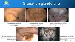grade glandulaire