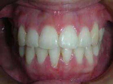 ortodoncia-damon-despues-1.jpeg