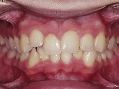 invisalign-antes.png