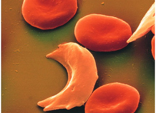 Genetic Treatments for Sickle Cell: When it comes to a devastating blood disorder, sometimes two wro