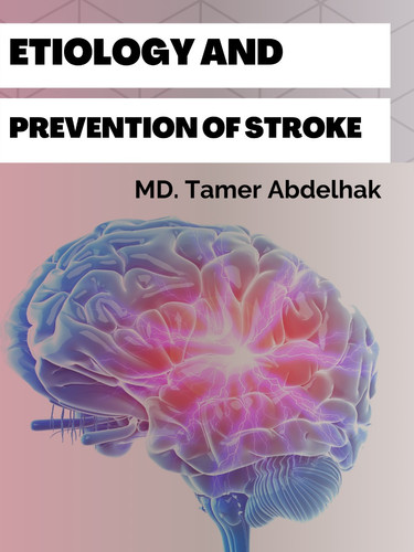 Etiology And Prevention Stroke