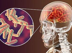 cerebro-bacteria-meningite-virus-cerebra