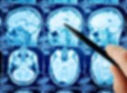 header-Atualização-em-Neurointensivismo-