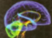 Brain1.jpg