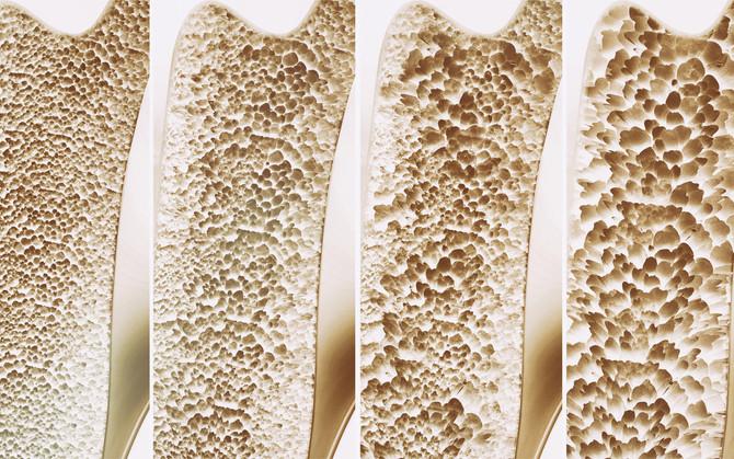 Osteoporosis un riesgo silencioso