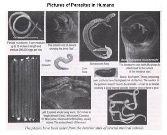 Detox Parasites! Everyone has them!