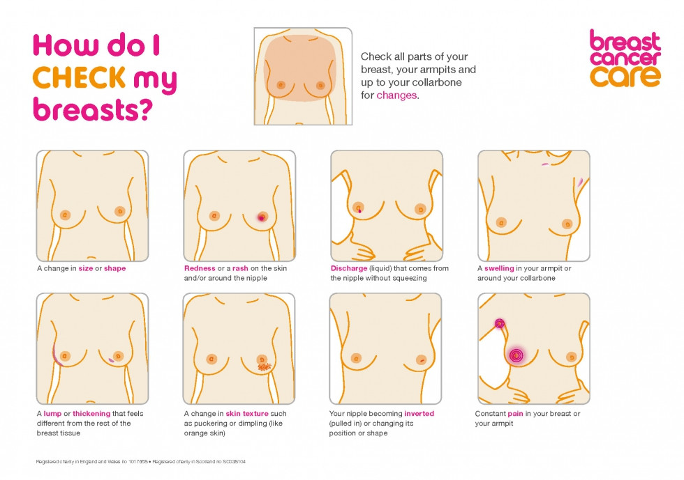 Breast changes to watch out for