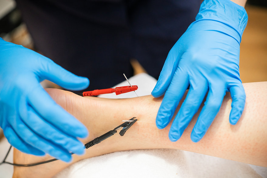 Electro-acupuncture dry with needle conn