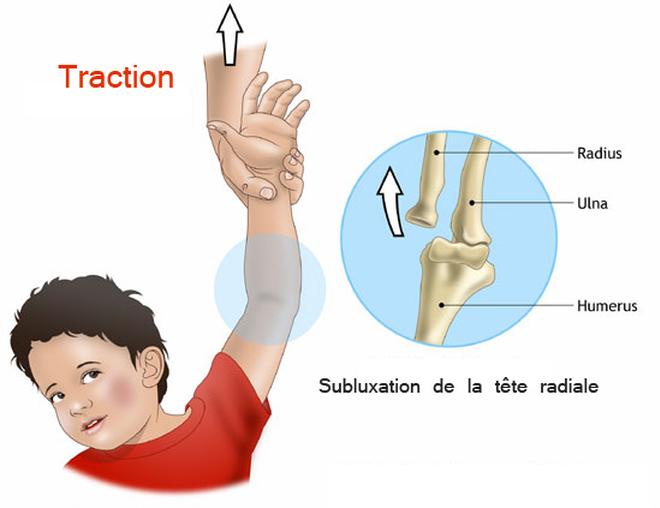 pronation douloureuse de l'enfant suite à une traction du bras