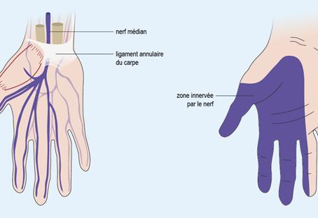 Traitement ostéopathie du canal carpien